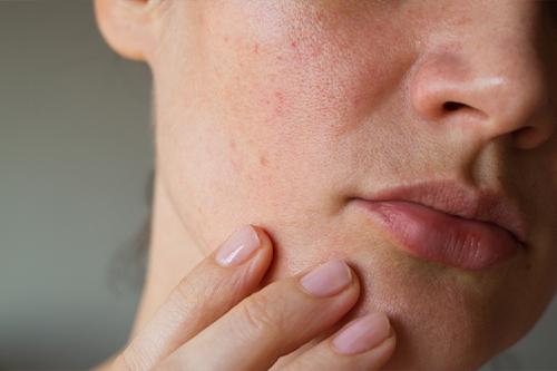 顔 肌 秋はたるみが加速!皮膚科医が教える簡単「ブルドッグ顔」改善 ...