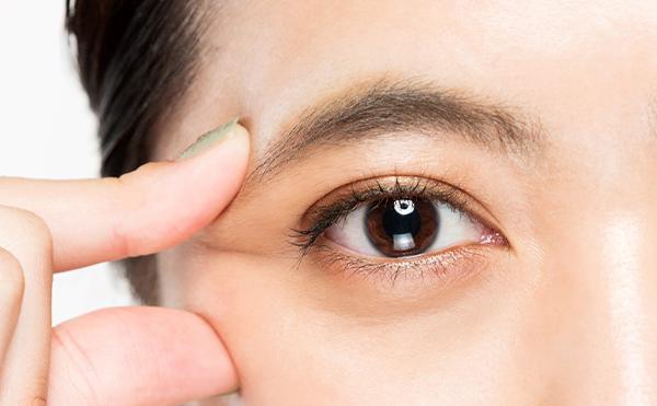 しわ 眼球 眼のシワによるトラブル、結膜弛緩症(けつまくしかんしょう)、ドライアイ
